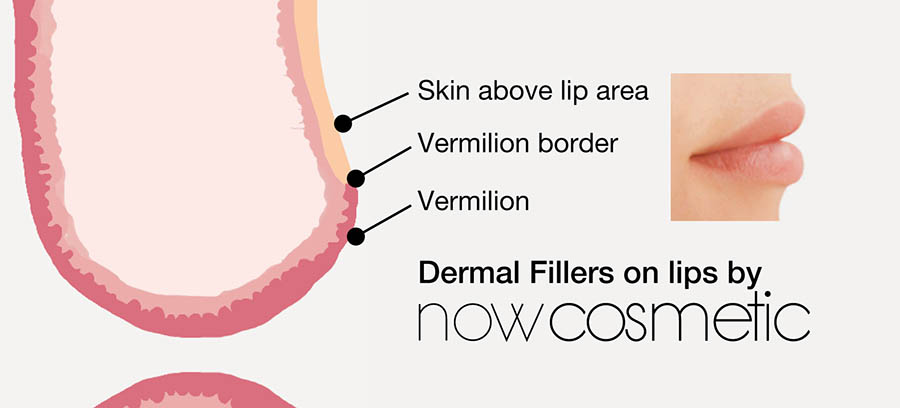 Lip enhancement with Dermal Fillers  - Lines and Wrinkles